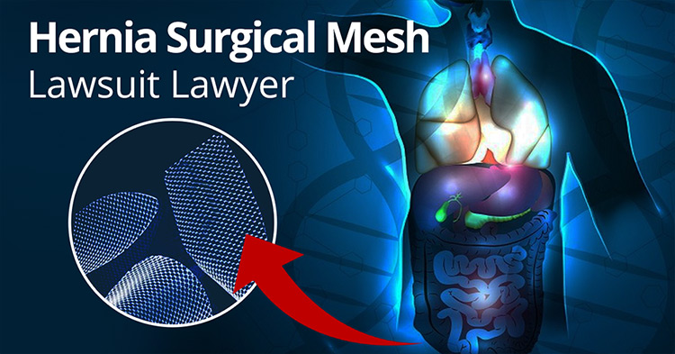 Hernia Surgical Mesh